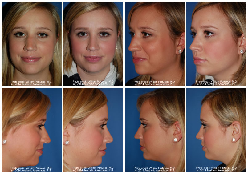 Asymmetrical Nose Before and After Photo Gallery - Nose