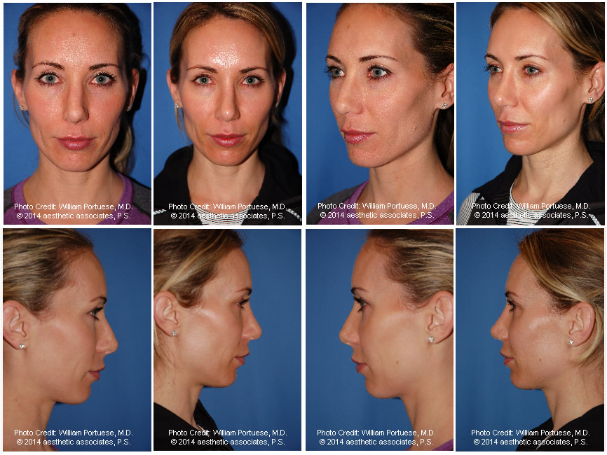 Asymmetrical Nose Before and After Photo Gallery - Nose ...