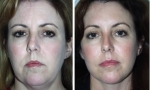 Brow Lift (Forehead Lift) Before/After