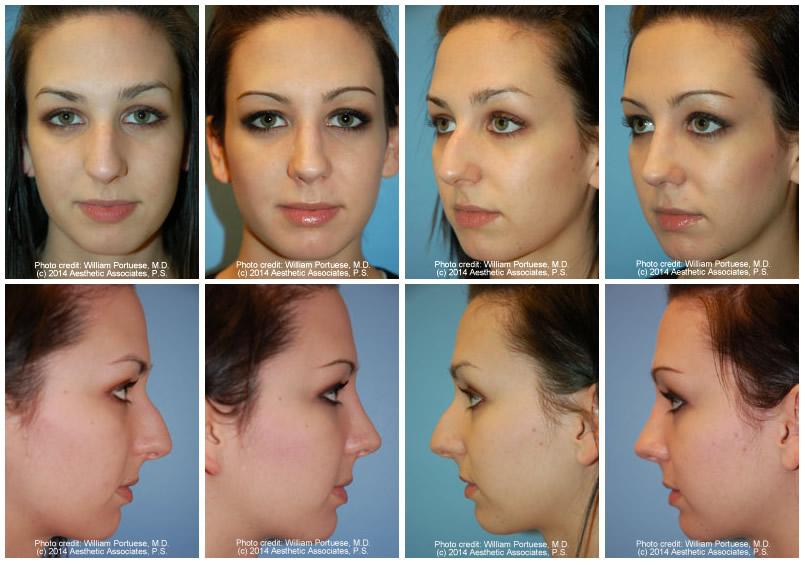 Rhinoplasty aka Nose Job: Info Page | The Plastic Surgery ...