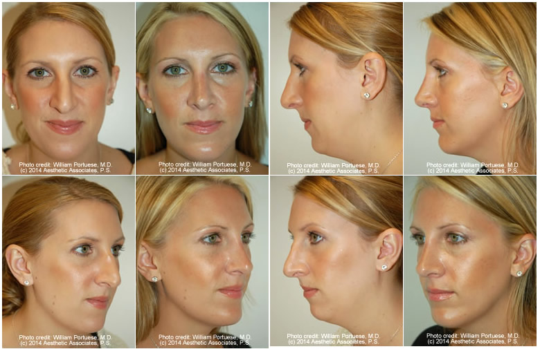 Crooked Nasal Bones Before and After Photo Gallery - Nose