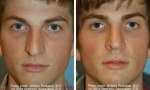 Crooked Nasal Bones Rhinoplasty Before/After
