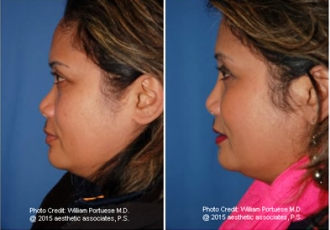 Dorsal Onlay Grafts / Implants Before/After