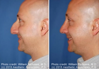 Down-Turned Tip Rhinoplasty Before/After