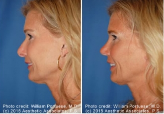 Rhinoplasty Patient Before/After