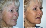 Facelift Surgery Before/After