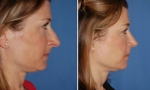 Chin Implant Before/After