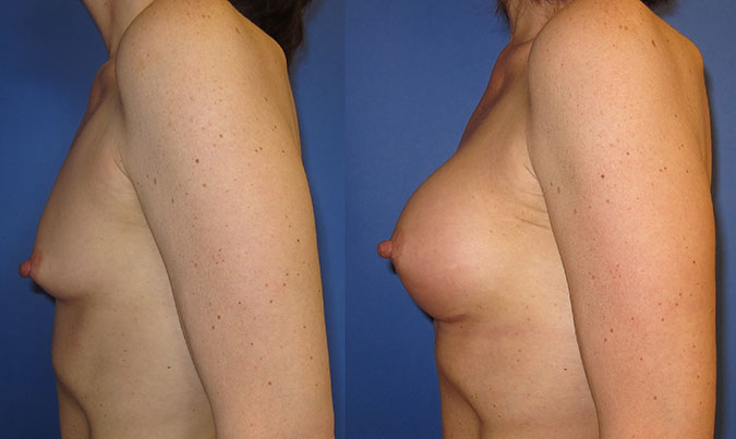 Breast Augmentation Before and After 104a