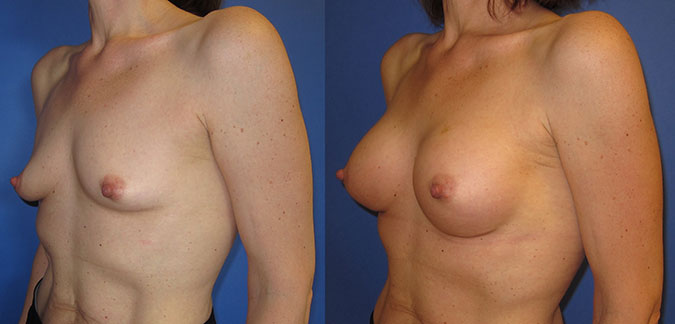 Breast Augmentation Before and After 104b