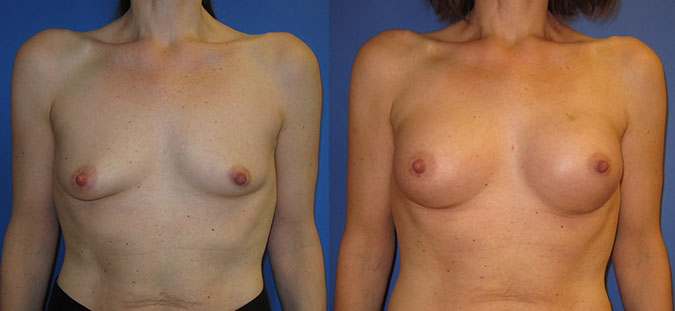 Breast Augmentation Before and After 104c