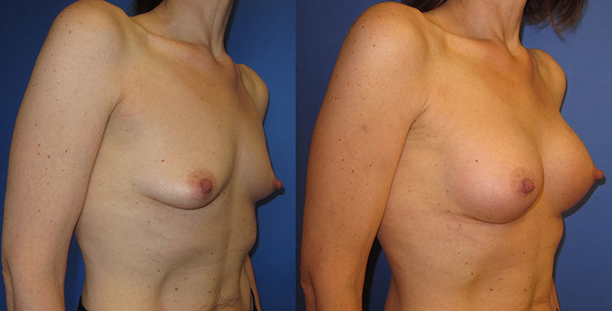Breast Augmentation Before and After 104d