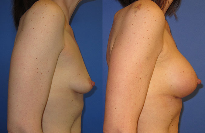 Breast Augmentation Before and After 104e