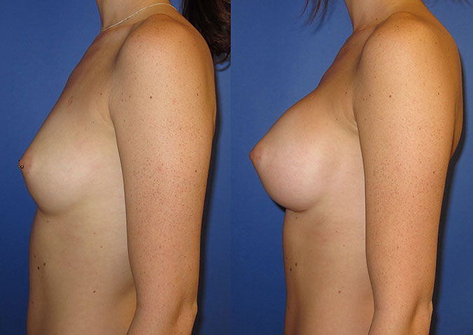 Breast Augmentation Before and After 105a