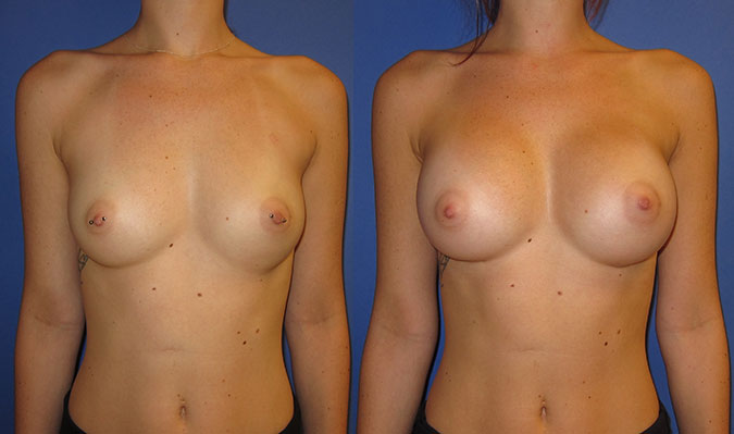 Breast Augmentation Before and After 105c