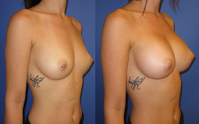 Breast Augmentation Before and After 105d
