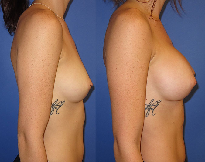 Breast Augmentation Before and After 105e