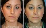 Narrow Nasal Bones Rhinoplasty Before/After