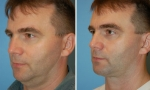 Neck Lift Surgery Before/After