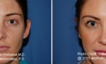 Otoplasty (Ear Surgery) Before/After