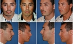 Rhinoplasty & Chin Implant Before/After