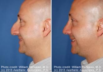 Saddle Nose Rhinoplasty Before/After
