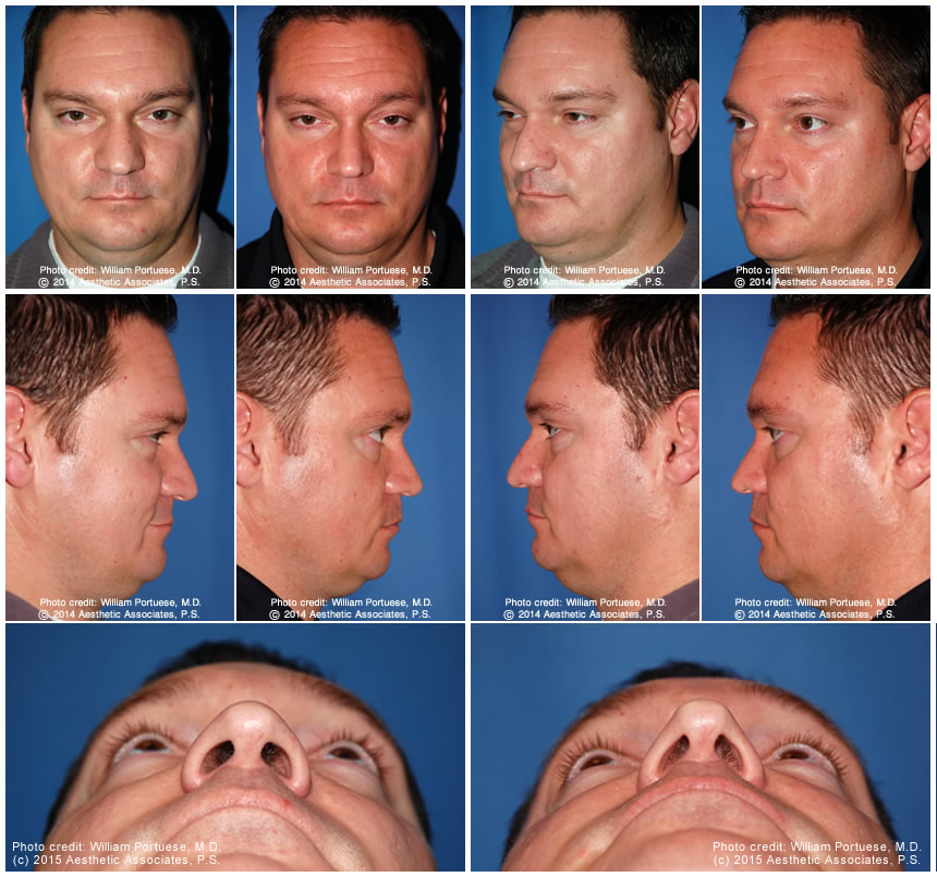 Wide Nasal Bones Before And After Photo Gallery Nose Surgery Photos