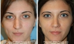 Wide Nasal Bones Rhinoplasty Before/After