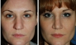 Wide Nasal Bones Rhinoplasty Before/After