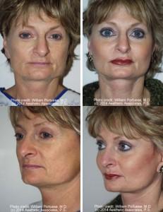 best cheek implants portland oregon