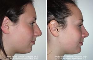 chin implant portland oregon