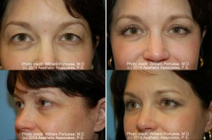 best eyelid surgery in Portland Oregon