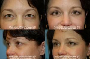 best upper lower lid rejuvenation Surgery Oregon