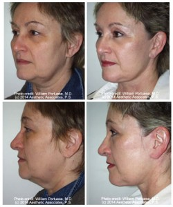 Best facelift in Portland OR