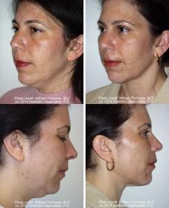 best neck lift surgery portland oregon